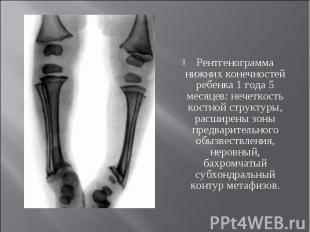 Рентгенограмма нижних конечностей ребенка 1 года 5 месяцев: нечеткость костной с