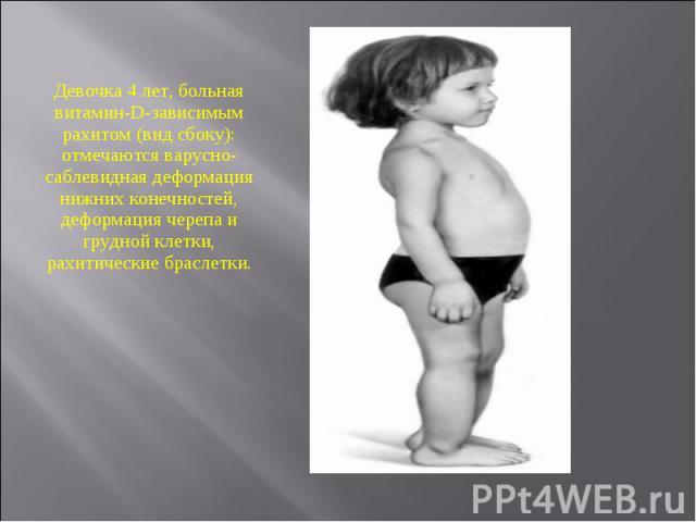 Девочка 4 лет, больная витамин-D-зависимым рахитом (вид сбоку): отмечаются варусно-саблевидная деформация нижних конечностей, деформация черепа и грудной клетки, рахитические браслетки.
