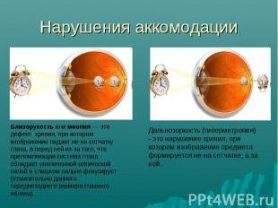 Нарушения аккомодации Близорукость или миопия — это дефект зрения, при котором и