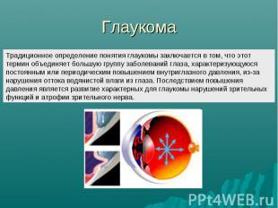 Глаукома Традиционное определение понятия глаукомы заключается в том, что этот т