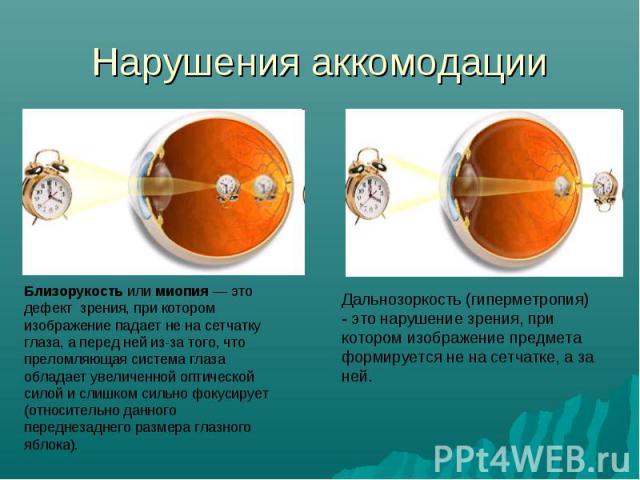 Нарушения аккомодации Близорукость или миопия — это дефект зрения, при котором изображение падает не на сетчатку глаза, а перед ней из-за того, что преломляющая система глаза обладает увеличенной оптической силой и слишком сильно фокусирует (относит…