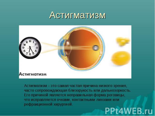 Астигматизм Астигматизм - это самая частая причина низкого зрения, часто сопровождающая близорукость или дальнозоркость. Его причиной является неправильная форма роговицы, что исправляется очками, контактными линзами или рефракционной хирургией.
