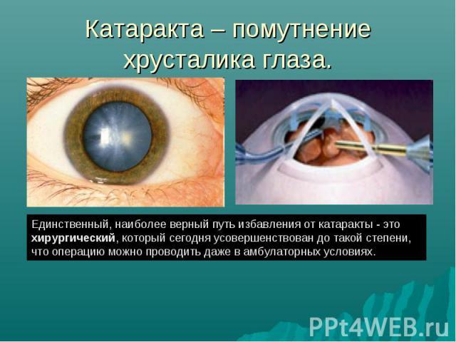 Катаракта – помутнение хрусталика глаза. Единственный, наиболее верный путь избавления от катаракты - это хирургический, который сегодня усовершенствован до такой степени, что операцию можно проводить даже в амбулаторных условиях.
