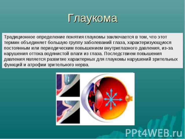 Глаукома Традиционное определение понятия глаукомы заключается в том, что этот термин объединяет большую группу заболеваний глаза, характеризующуюся постоянным или периодическим повышением внутриглазного давления, из-за нарушения оттока водянистой в…