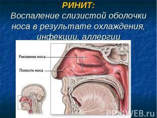 РИНИТ:Воспаление слизистой оболочки носа в результате охлаждения, инфекции, алле