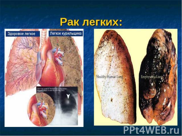 Рак легких: