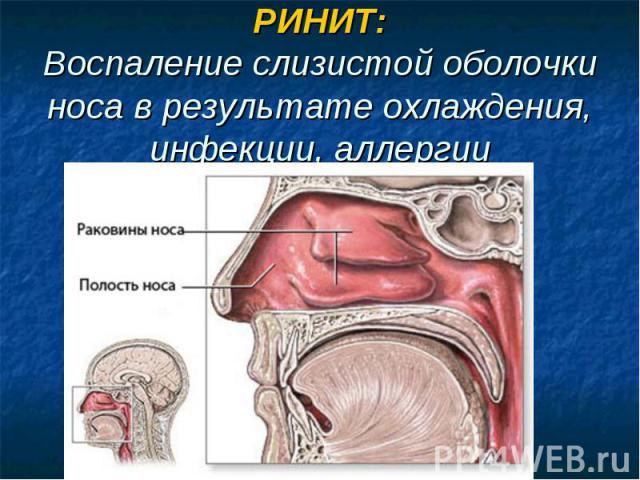 РИНИТ:Воспаление слизистой оболочки носа в результате охлаждения, инфекции, аллергии