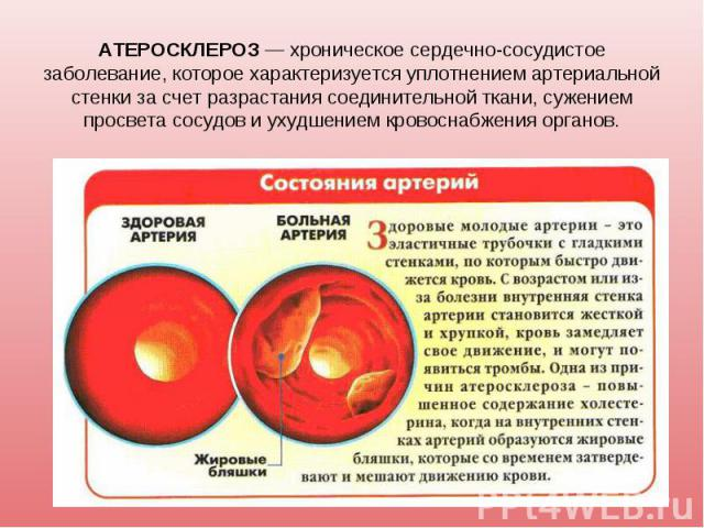 АТЕРОСКЛЕРОЗ — хроническое сердечно-сосудистое заболевание, которое характеризуется уплотнением артериальной стенки за счет разрастания соединительной ткани, сужением просвета сосудов и ухудшением кровоснабжения органов.