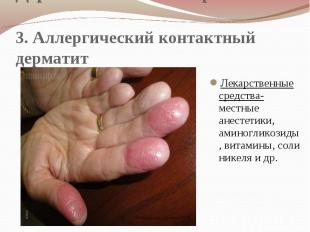 Дерматологические проявления 3. Аллергический контактный дерматит Лекарственные