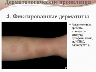 Дерматологические проявления 4. Фиксированные дерматиты Лекарственные средства-