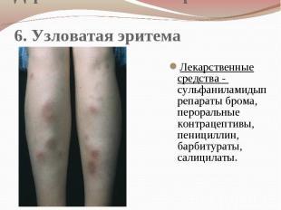 Дерматологические проявления 6. Узловатая эритема Лекарственные средства - сульф