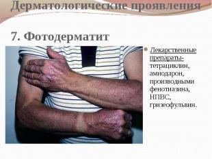 Дерматологические проявления 7. Фотодерматит Лекарственные препараты- тетрацикли