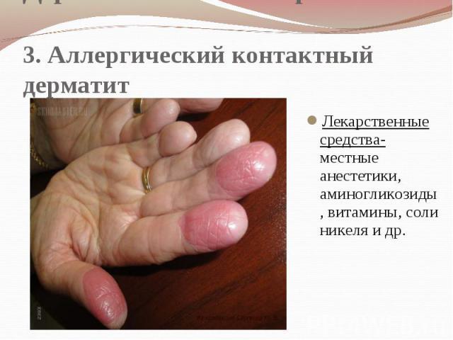 Дерматологические проявления 3. Аллергический контактный дерматит Лекарственные средства- местные анестетики, аминогликозиды, витамины, соли никеля и др.