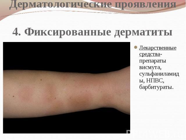 Дерматологические проявления 4. Фиксированные дерматиты Лекарственные средства- препараты висмута, сульфаниламиды, НПВС, барбитураты.