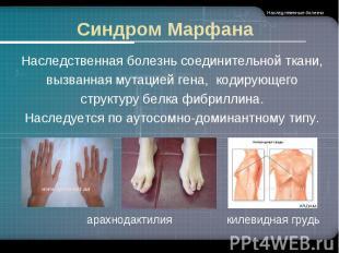 Синдром Марфана Наследственная болезнь соединительной ткани,вызванная мутацией г