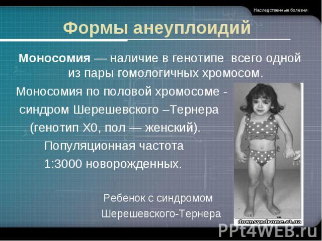 Формы анеуплоидий Моносомия — наличие в генотипе всего одной из пары гомологичных хромосом.Моносомия по половой хромосоме - синдром Шерешевского –Тернера (генотип X0, пол — женский). Популяционная частота 1:3000 новорожденных.Ребенок с синдромом Шер…