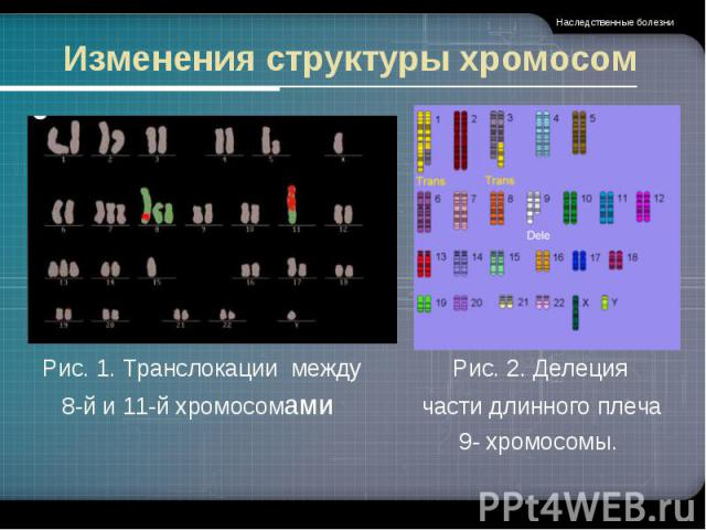 Изменения структуры хромосом Рис. 1. Транслокации междуРис. 2. Делеция 8-й и 11-й хромосомами части длинного плеча 9- хромосомы.