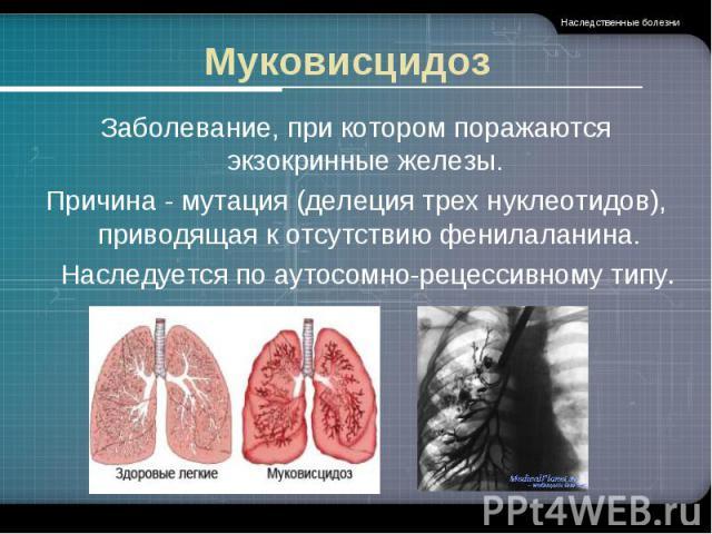 Муковисцидоз Заболевание, при котором поражаются экзокринные железы. Причина - мутация (делеция трех нуклеотидов), приводящая к отсутствию фенилаланина. Наследуется по аутосомно-рецессивному типу.