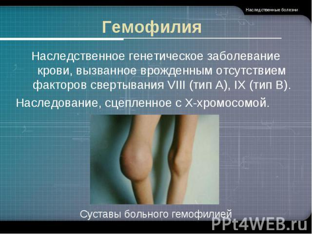 Гемофилия Наследственное генетическое заболевание крови, вызванное врожденным отсутствием факторов свертывания VIII (тип А), IX (тип В).Наследование, сцепленное с Х-хромосомой. Суставы больного гемофилией