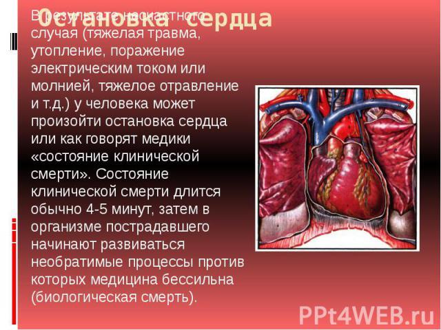 Остановка сердца В результате несчастного случая (тяжелая травма, утопление, поражение электрическим током или молнией, тяжелое отравление и т.д.) у человека может произойти остановка сердца или как говорят медики «состояние клинической смерти». Сос…