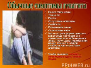 Обычные симптомы гепатита Пожелтение кожи;Тошнота;Рвота;Отсутствие аппетита;Слаб