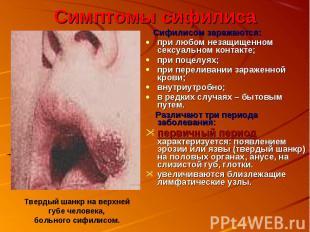 Симптомы сифилиса Сифилисом заражаются:при любом незащищенном сексуальном контак