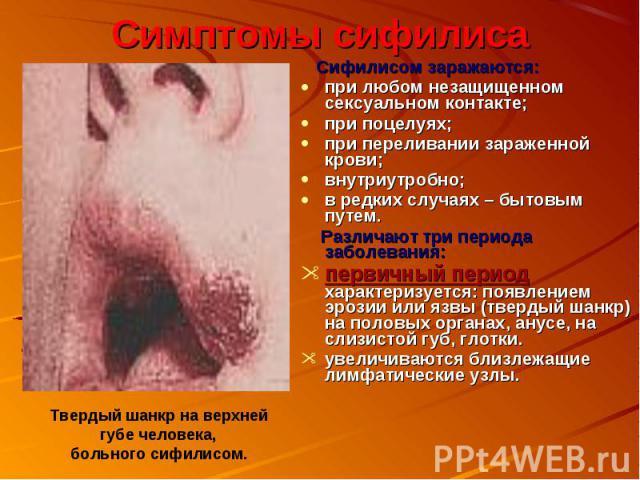 Симптомы сифилиса Сифилисом заражаются:при любом незащищенном сексуальном контакте;при поцелуях;при переливании зараженной крови;внутриутробно;в редких случаях – бытовым путем. Различают три периода заболевания:первичный период характеризуется: появ…