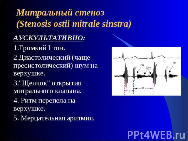 Митральный стеноз(Stenosis ostii mitrale sinstra) АУСКУЛЬТАТИВНО:1.Громкий I тон. 2.Диастолический (чаще пресистолический) шум на верхушке. 3.