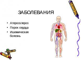 ЗАБОЛЕВАНИЯ АтеросклерозПорок сердцаИшемическая болезнь