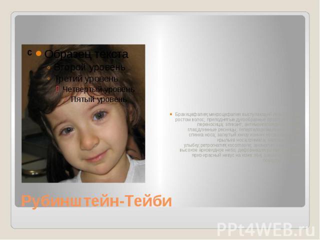 Брахицефалия;микроцефалия выступающий лоб с низким ростом волос; приподнятые дугообразные брови; широкая переносица; эпикант; антимонголоидный разрез глаз;длинные ресницы; гипертелоризм,птоз широкая спинка носа; загнутый книзу кончик носа;гипоплазия…