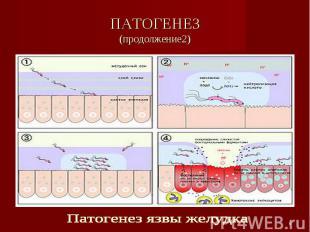 ПАТОГЕНЕЗ(продолжение2) Патогенез язвы желудка