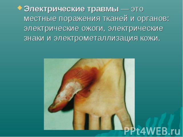 Электрические травмы— это местные поражения тканей и органов: электрические ожоги, электрические знаки и электрометаллизация кожи.