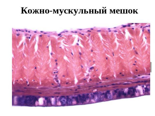 Кожно-мускульный мешок