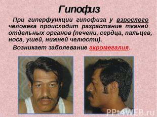 Гипофиз При гиперфункции гипофиза у взрослого человека происходит разрастание тк