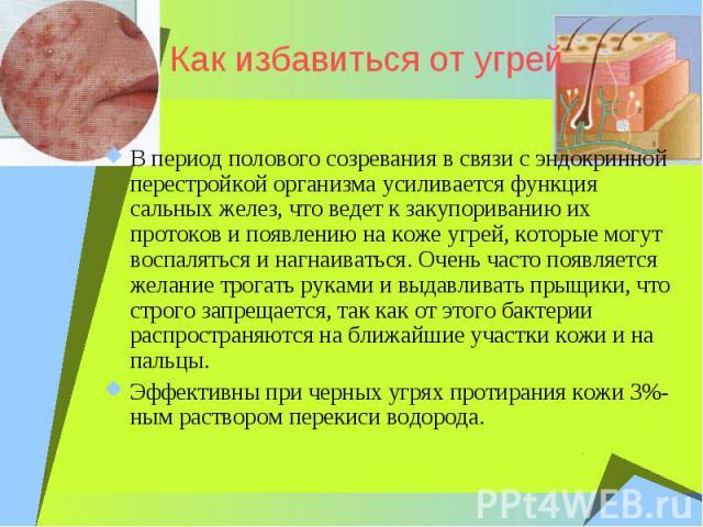 Как избавиться от угрейВ период полового созревания в связи с эндокринной перестройкой организма усиливается функция сальных желез, что ведет к закупориванию их протоков и появлению на коже угрей, которые могут воспаляться и нагнаиваться. Очень част…