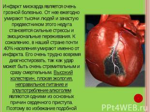 Инфаркт миокарда является очень грозной болезнью. От нее ежегодно умирают тысячи