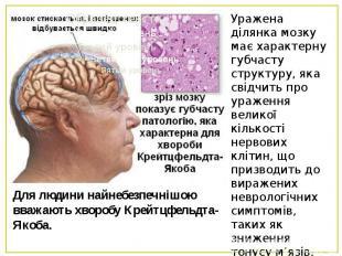 Для людини найнебезпечнішою вважають хворобу Крейтцфельдта-Якоба.