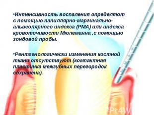Интенсивность воспаления определяют с помощью папиллярно-маргинально-альвеолярно