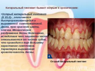 Острый катаральный гингивит(К 05.0)– отличается быстроразвивающейся и выраженно