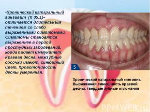 Хронический катаральный гингивит(К 05.1)–отличается длительным течением со сла