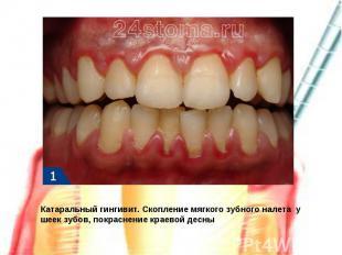 Катаральный гингивит. Скопление мягкого зубного налета у шеек зубов, покраснение