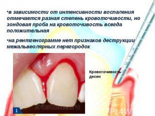 в зависимости от интенсивности воспаления отмечается разная степень кровоточивос