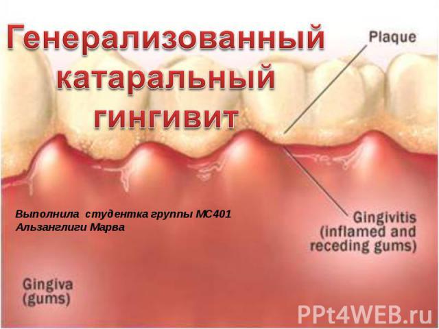 Генерализованный катаральный гингивитВыполнила студентка группы МС401Альзанглиги Марва