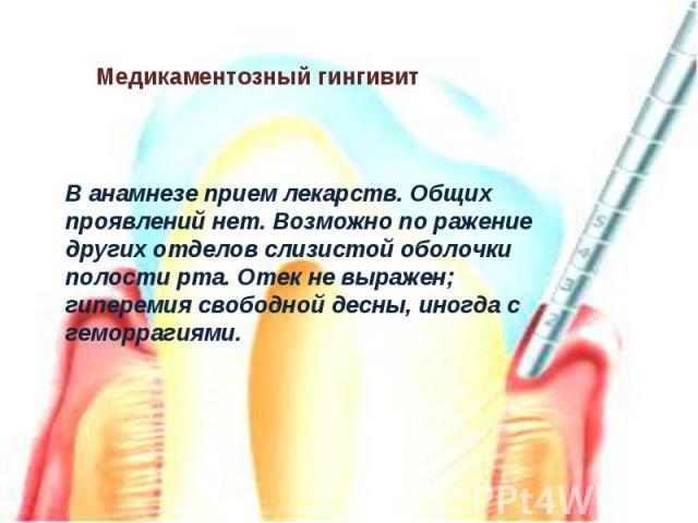 В анамнезе прием лекарств. Общих проявлений нет. Возможно по ражение других отделов слизистой оболочки полости рта. Отек не выражен; гиперемия свободной десны, иногда с геморрагиями.