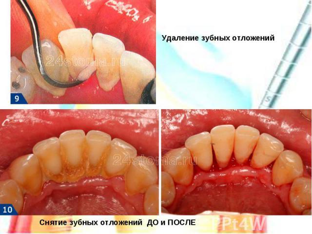 Удаление зубных отложенийСнятие зубных отложений ДО и ПОСЛЕ