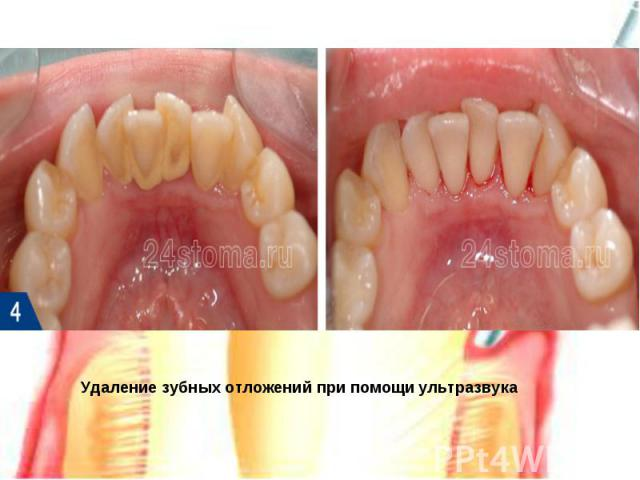 Удаление зубных отложений при помощи ультразвука