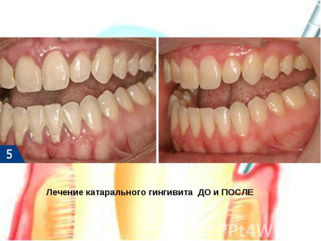 Лечение катарального гингивита ДО и ПОСЛЕ