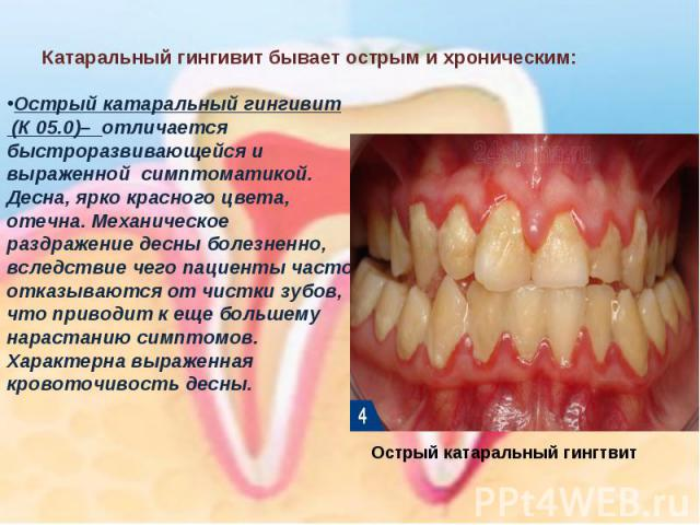 Острый катаральный гингивит(К 05.0)– отличается быстроразвивающейся и выраженной симптоматикой. Десна, ярко красного цвета, отечна. Механическое раздражение десны болезненно, вследствие чего пациенты часто отказываются от чистки зубов, что приводи…