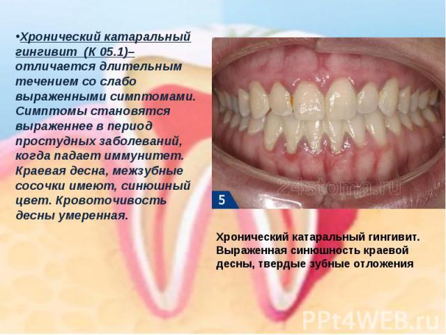Хронический катаральный гингивит(К 05.1)–отличается длительным течением со слабо выраженными симптомами. Симптомы становятся выраженнее в период простудных заболеваний, когда падает иммунитет. Краевая десна, межзубные сосочки имеют, синюшный цвет.…