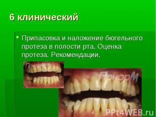 Припасовка и наложение бюгельного протеза в полости рта. Оценка протеза. Рекомен